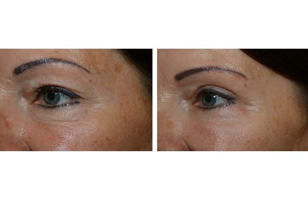 vorher nachher Beispiel einer Augenlidstraffung mit Brauenlifting und Eigenfetttransplantation
