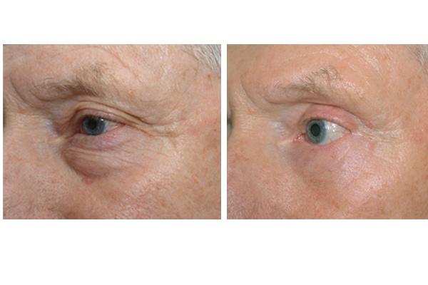 Beispiel einer Augenlidstraffung