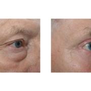 Vorher Nachher einer Korrektur von Tränensäcken und Schlupflidern mit anschließender Augenbrauenhebung
