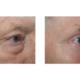 Oberlidstraffung Augenbrauenhebung Unterlidstraffung Nach Loeb Umschlagplastic Rechts