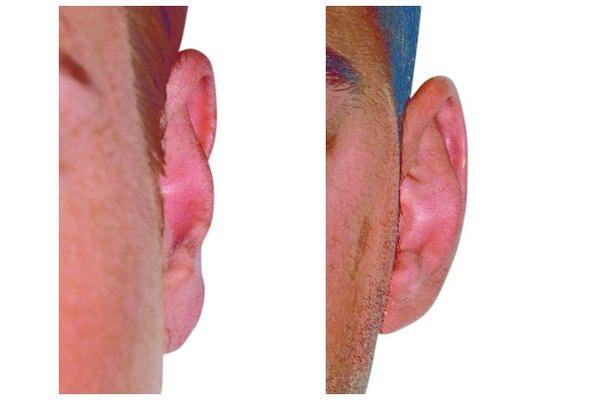 Abstehendes Ohr aufgrund zu breiter Concha
