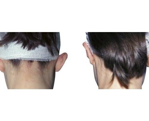 Verschmälerung der Conchen, Korrektur des stumpfen Anthelixwinkels und der Ohrläppchen