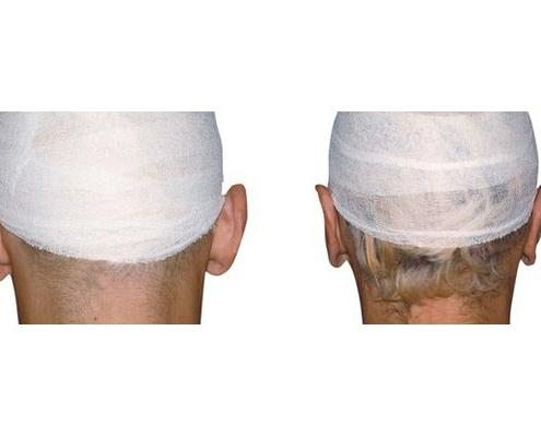 Ohrenkorrektur 9