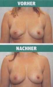 NEWS Oktober 2014 - vorhe-nachher-delle-eigenfett-transplantation