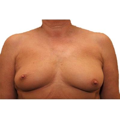 Das Ergebnis der Eigenfetttransplantation ein Jahr nach der Operation.