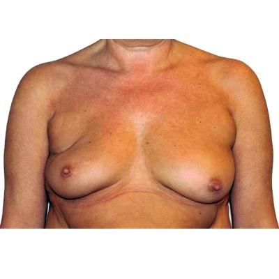 Vorher Bild einer Brustkrebspatientin welche durch sich für eine Rekonstruktion mit Eigenfett  entschieden hat.