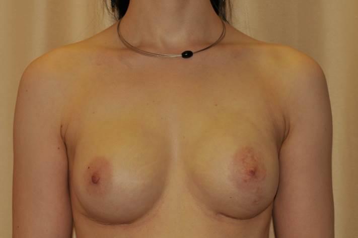 Diese 24jährige Patientin trägt das BRCA1-Gen und ist somit Hochrisikopatientin: die Wahrscheinlichkeit, bis zu Ihrem 45 LJ an Brustkrebs zu erkranken, beträgt etwa 90%. Sie hatte sich daher entschlossen vorbeugend Ihr Brustgewebe entfernen zu lassen. (Wie auch Angelina Jolie recht Medienwirksam getan hat. Bei dieser OP kann die Brustwarze und auch die gesamte Haut der Brust erhalten bleiben, weshalb fast immer eine nahezu perfekte Rekonstruktion mit Silikonimplantaten simultan möglich ist.