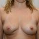 33jährige Patientin die im inneren unteren Bereich der rechten Brust mit der Diagnose Brustkrebs operiert wurde. Zustand 2 Jahre nach der OP und nach der Bestrahlung. 33jährige Patientin die im inneren unteren Bereich der rechten Brust mit der Diagnose Brustkrebs operiert wurde. Das linke Bild zeigt den Zustand 2 Jahre nach der OP und nach der Bestrahlung.