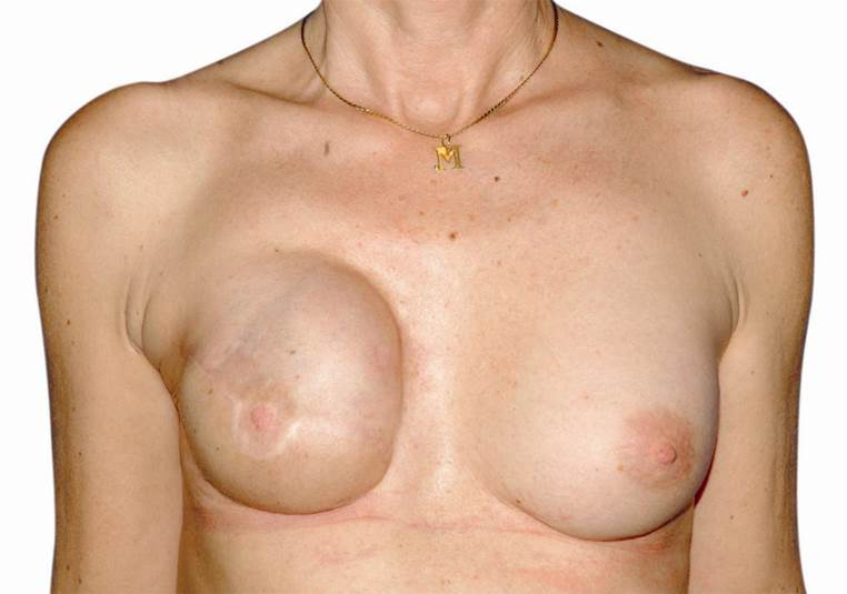Patientin bei der auf der rechten Seite ein fortgeschrittener Brustkrebs mit Entfernung der Brust und Teilen des großen Brustmuskels behandelt wurde. Die rekonstruktion erfolgte mittles Silikonimplantat und Deckung mit Hautmuseklappenplastik vom Rücken (Latissimus)