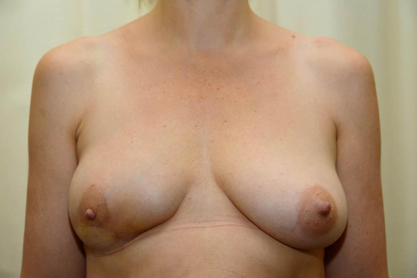 Patientin 16 Monate nach einer Brustrekonstruktion mit Eigenfett.