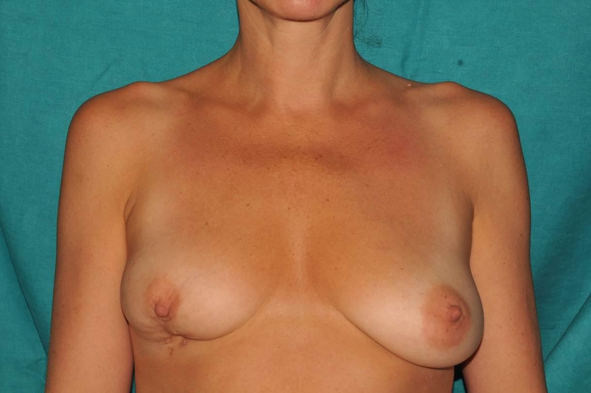Bei dieser jungen Patientin (37 Jahre) wurde sehr früh Brustkrebs am Unterrand der rechten Brust festgestellt. Nach Entfernung des Tumors und Bestrahlung der Region verblieb eine kleinere Brust mit unschöner, deformierender Einziehung des Warzenhofes und des bestrahlten Areals (linkes Bild). Die Wiederherstellung erfolgte mittels Ersatz des kleinen geschädigten Hautareals durch einen von der unmittelbaren Umgebung eingebrachten Hautlappen und gleichzeitiger Unterfütterung mit Eigen fett sowie einbringen in die übrige Brust um eine Volumenangleichung zu erzielen. Dr. Turkof