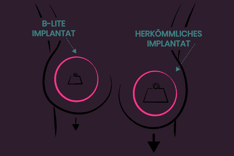 Gewichtsunterschied herkömmliche Silikonimplantat und B