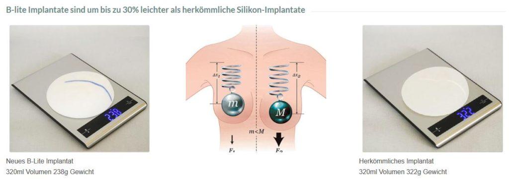 Vergleich Leicht Brust Implantat