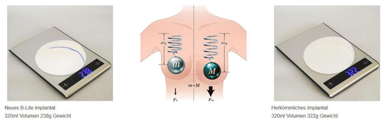 Vergleich Leicht Brust Implantat - Wien