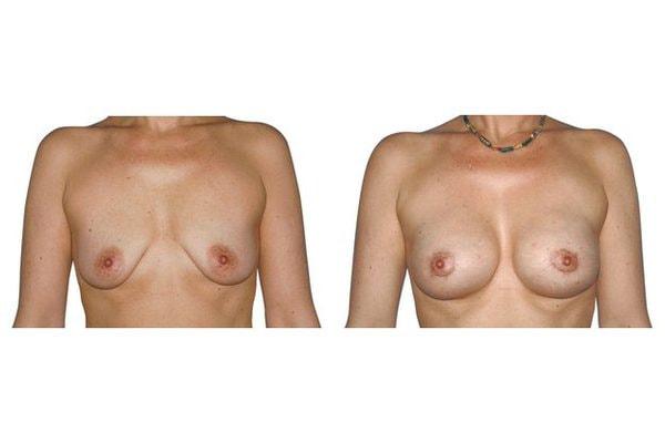 Ergebnis einer Brustvergroesserung Mit Implantaten und Straffung