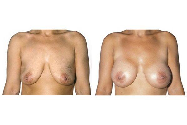 Vorher Nachher Beispiel einer Brustvergroesserung Mit Implantaten Ohne Straffung.
