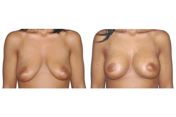 Brustvergroesserung Mit Implantaten Und Straffung