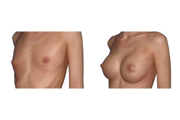 Brustvergroesserung Mit Positionierung Der Implantate Halb Unter Halb Ueber Dem Muskel