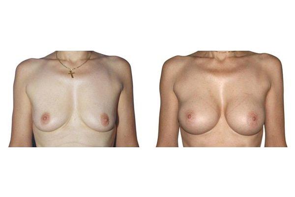Brustvergroesserung Mit Positionierung Der Implantate Ueber Dem Muskel.