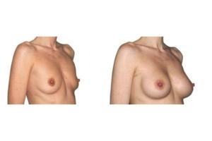 Brustvergroesserung Mit Positionierung Der Implantate Unter Dem Muskel Zugang Ueber Die Achsel