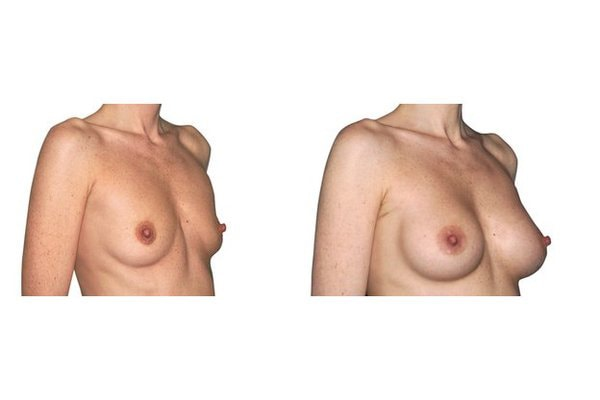 Brustvergroesserung Mit Positionierung Der Implantate Unter Dem Muskel und Zugang Ueber Die Achsel