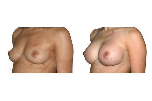 Vorher Nachher einer Brustvergroesserung mit Silikonimplantaten, Positionierung Unter Dem Muskel.