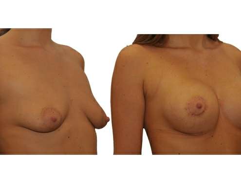 Brustvergroesserung Implantat 400 Rund