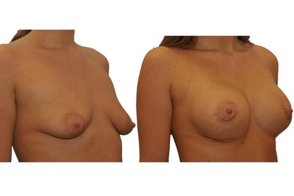 Vorher Nachher einer Brustvergroesserung mit Silikonimplantat