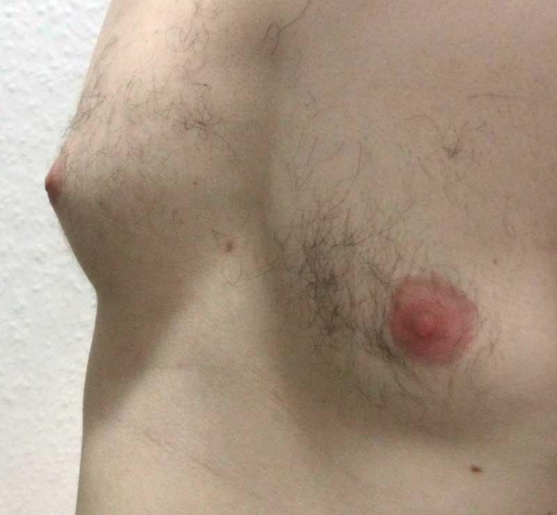 Bei jedem zweiten Mann findet sich weibliches Brustdrüsengewebe und kann durchaus Ausmaße von einem Cup A oder mehr annehmen.