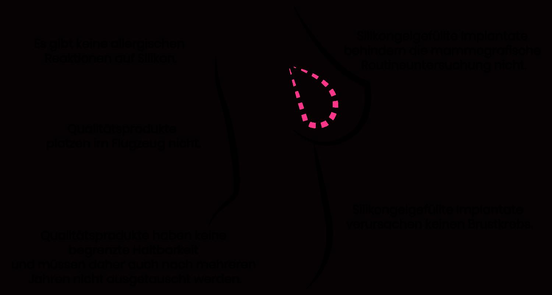 Wissenswertes zur Brustvergrößerung mit Silikonimplantaten