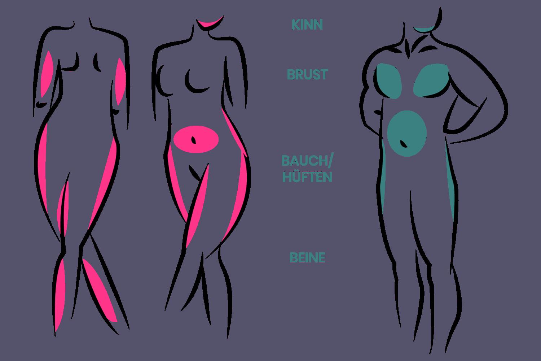 Fett kann an verschiedenen Stellen entnommen werden wie am Kinn, der Brust, am Bauch, an den Hüften bzw. an den Beinen.