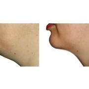 Fettabsaugung-Hals