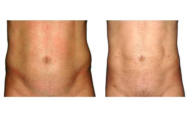 Fettabsaugung-Mann--Bauch--beide-Flanken