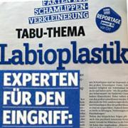 Labioplastik Experten Fuer Diesen Eingriff