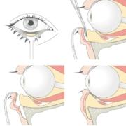 Durch eine Augenlidkorrektur kann eine ungünstige Fettverteilung und Fettablagerungen rund um das Auge korrigiert werden.