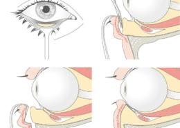Augenlidkorrektur Fettverteilung