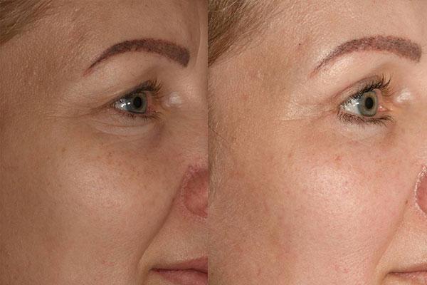 Beispiel vor und nach einer Augenlidstraffung, Brauenlifting, Faceliftung und Eigenfetttransplantation.