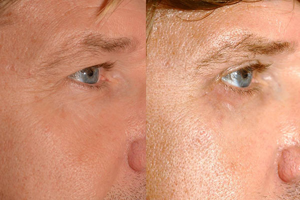 Beispiel eines Patienten mit mehreren Eingriffen im Gesicht: Augenlidstraffung, Brauenlifting, Faceliftung und Eigenfetttransplantation