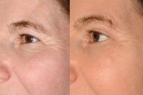Beispiel einer Patientin bei der neben einer Augenlidstraffung auch ein Brauenlifting, Midi Faceliftung und eine Eigenfetttransplantation durchführt wurden.