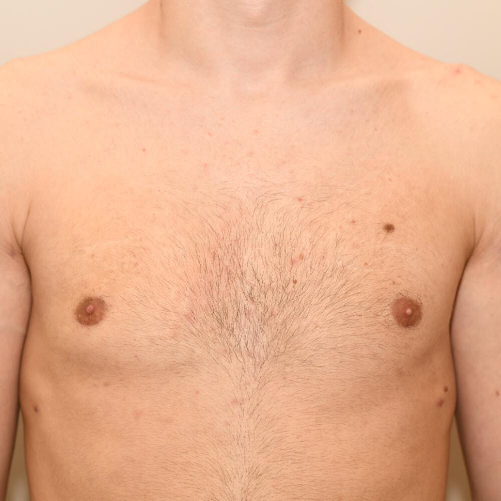 Bei diesem Patienten wurde das Brustdrüsengewebe entfernt und das umliegende Areal mit einer Kanüle abgesaugt.