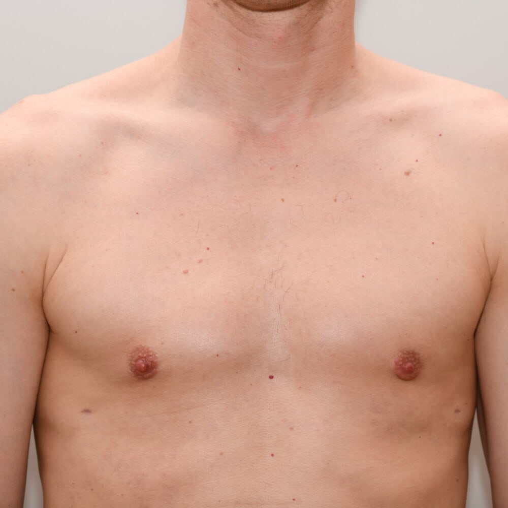 In der Regel werden die Kosten für die Enfernung des Brustdrüsengewebes von den Krankenkassen übernommen. Der Ästhetische Teil muss vom Patienten selbst bezahlt werden.