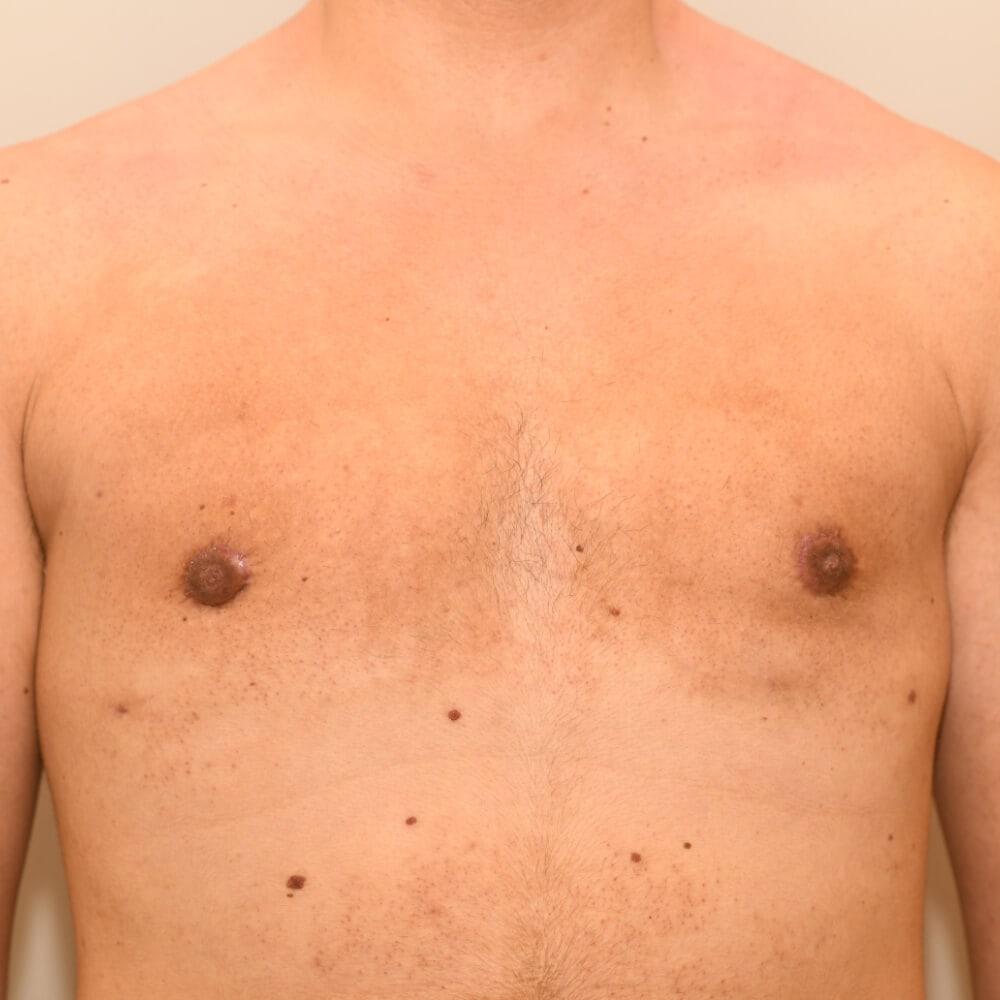 Bei stärker ausgeprägten Fällen wo ein Hautüberschuss besteht, wird dieser mit einer Straffung korrigiert.