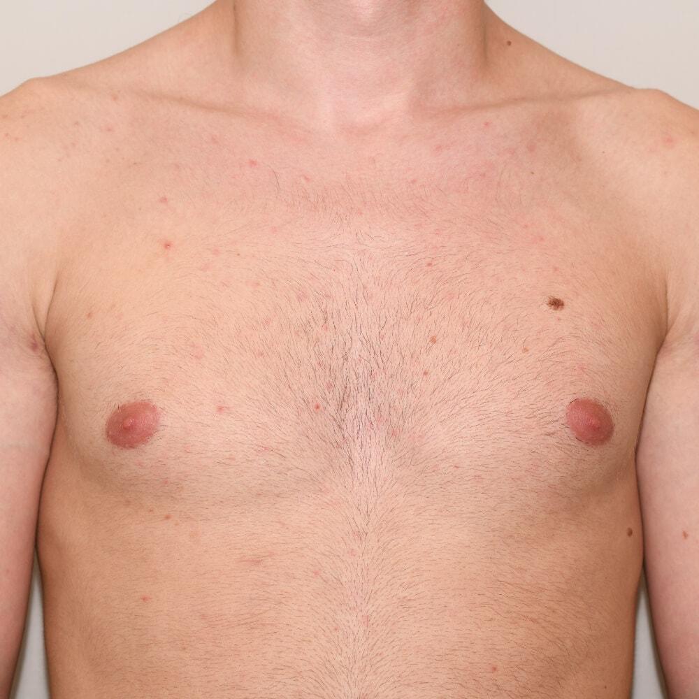 Nicht bei allen Patienten bleibt nach der Operation ein Hautüberschuss der zu entfernen ist.