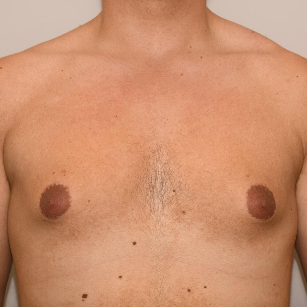 Bei diesem Patienten kann man sehr deutlich eine Mischform, sprich vermehrt Brustdrüsengewebe und eine Fettansammlung erkennen.