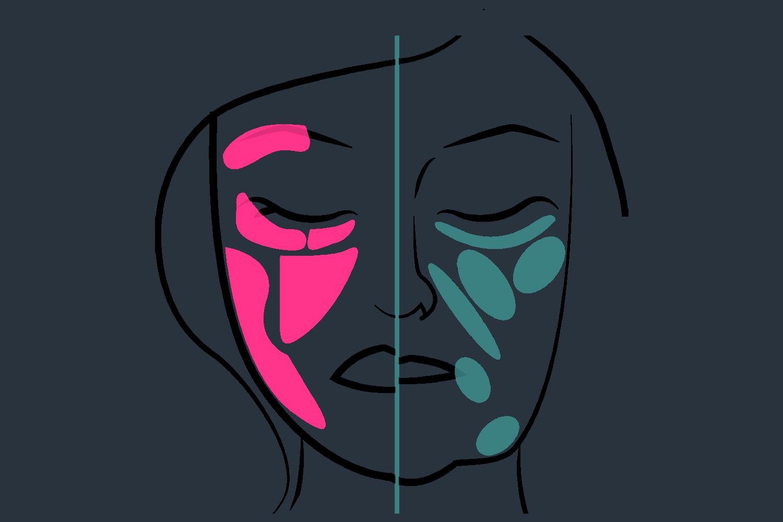 Im Laufe der Zeit kommt es zu einem Volumenverlust im Gesicht welches durch Filter ausgebessert werden kann.