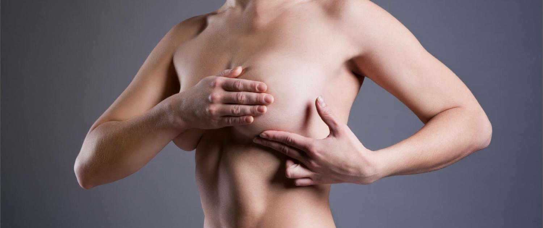 Brustvergrößerung mit B-lite Leichtimplantaten