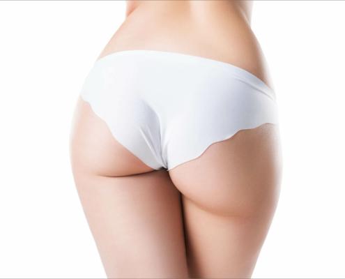 Unter einer Gesäßstraffung versteht man meist die Korrektur Korrektur eines abgeflachten und abgesunken Gesäßes.