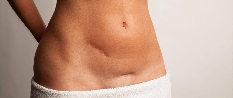 Unschöne Narben können mittels chirurgischen oder konservativen Behandlungen verschönert werden.