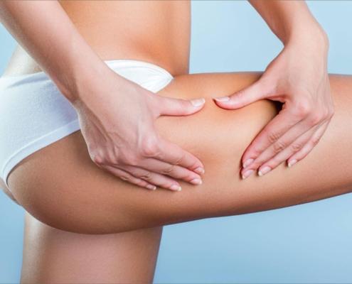 Bei der Oberschenkelstraffung wird neben dem Hautüberschuss nach starker Gewichtsabnahme auch immer häufiger aus konstitutionellen Gründen durchgeführt.