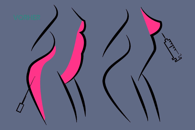 Brustvergrößerung kombiniert mit einer Fettabsaugung